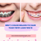 what color makes your teeth look whiter with braces