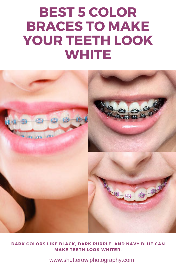braces colors for whiter teeth